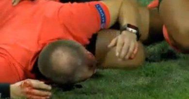 UEFA : UN ARBITRE TOUCHÉ A LA TÊTE PAR UN PROJECTILLE